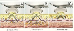 cavitacion ultrasonido