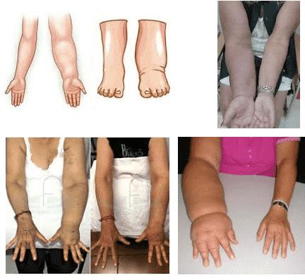 linfedema venoso cavitacion