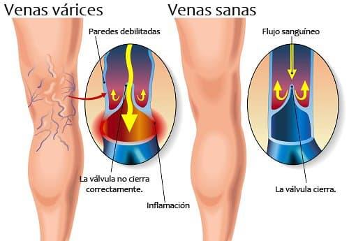 venas varices